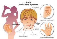 fetal-alcohol-syndrome-medical-illustration-symptoms-45784162