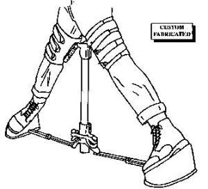 orthoses-for-legg-calve-perthes-disease-